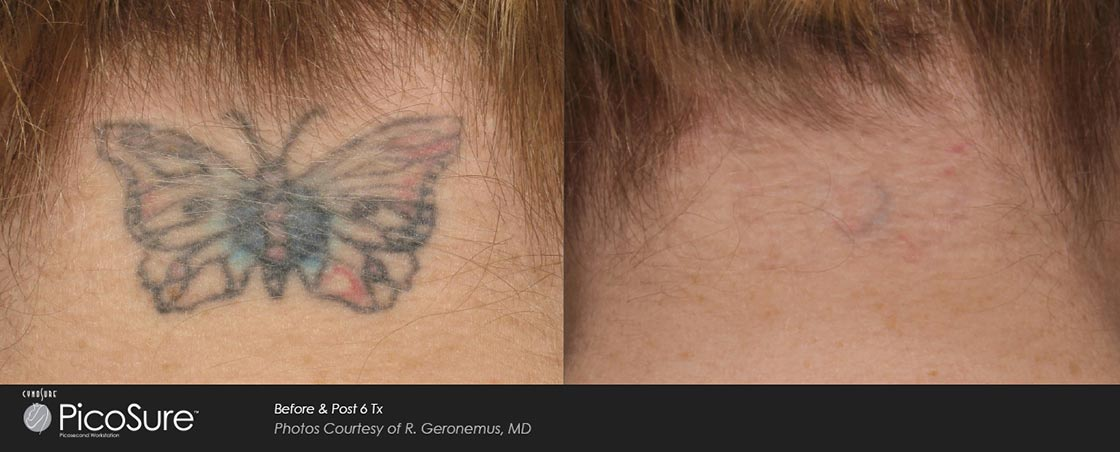 Hada cosmetic medicine for Post laser tattoo removal